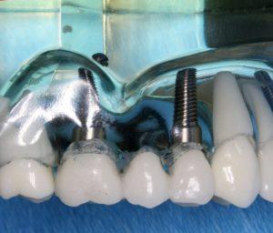 L'implant dentaire 3D pour reconstituer une vraie dent